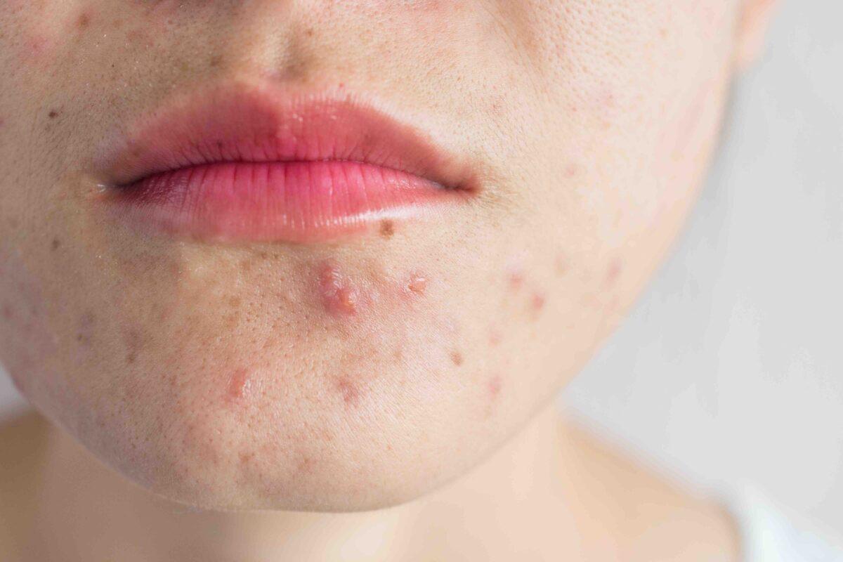 Voeding en acne Saskia Florijn